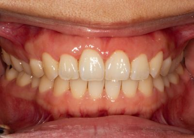 Healthy gums with a pink colour and no sign of bleeding or swelling. These teeth have not incurred any loss of gum or bone attachment. The teeth are firm with no mobility