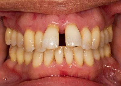 Periodontitis has resulted in the recession of gum around multiple teeth. The loss of bone and gum support around the teeth has led to drifting away from their original position. Large gaps are appearing between teeth