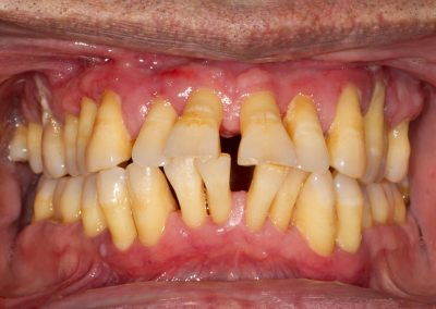 Here we see the gums appearing extremely swollen and the progressive loss of bone around the teeth has resulted in significant displacement and drifting of the teeth. Teeth are beginning to develop painful abscesses and have become considerably loose